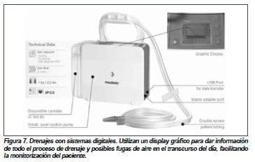 Drenaje con sistemas digitales, Esternotomía