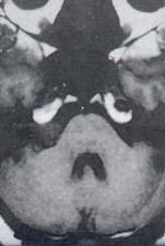Neurinoma intracanalicular con extensión a la cisterna pontocerebelosa derecha