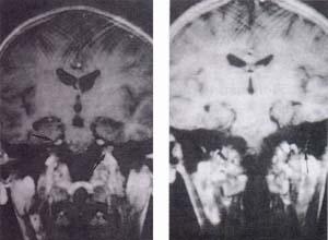 Captación anormal del contraste paramagnético por infiltración leptomeníngea