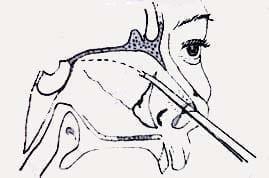 Osteotomía de la lámina perpendicular con cincel de doble guarda
