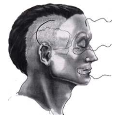 Posición quirúrgica con el cirujano colocado a la cabeza del paciente