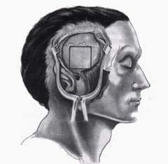 Exposición del cráneo luego de elevar un colgajo músculo-perióstico
