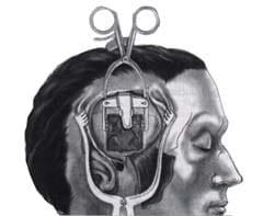 Elevación de la duramadre y el lóbulo temporal