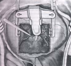 Fresado de la porción más medial del conducto auditivo interno