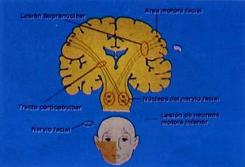 Parálisis facial supranuclear