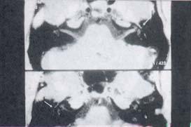 Segmento timpánico del nervio facial en proyección axial