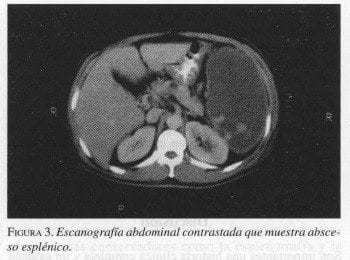 Escanografía Abdominal contrastada que muestra Absceso Esplénico