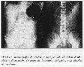 Asas de intestino delgado, con niveles Hidroaéreos