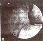 Cuello vesical despues de la inyección del colágeno