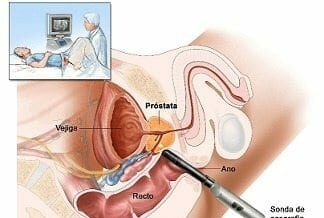 Prostatectomía Radical Perineal