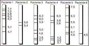 Patrón de bandas de proteínas de extrato de F