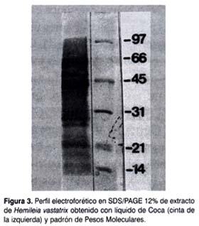 Perfil electrónico en SDS-PAGE
