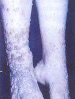 Inmunodeficiencia celular con inmunoglobulinas y anticuerpos normales