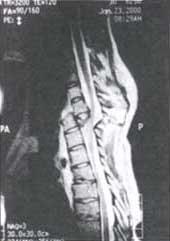 Resonancia magnética de columna torácica
