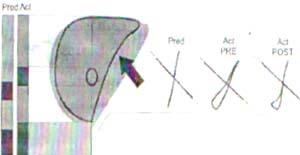 Pletismografía de sujeto con obstrucción