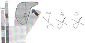 Plestismografía de sujeto con enfisema
