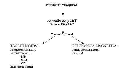 Esquema Estenosis Traqueal