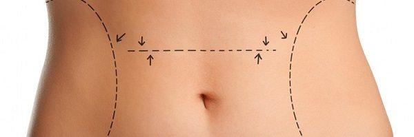 tratamientos para bajar de peso en cali colombia