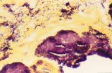 Aspecto microscópico las vegetaciones coloración de Gram