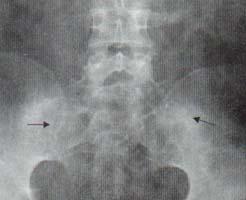 Radiografía de pelvis