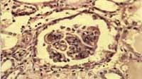 Microfotografía de otro glomérulo mostrando engrosamiento