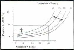 El diagrama del ventrículo derecho