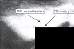 Vista transorbital del electrodo y posicionador (EP) implantados