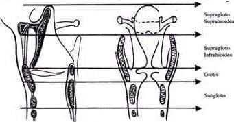 Vaciamiento cervical
