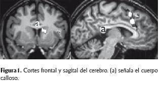 Cortes frontal y sagital del cerebro