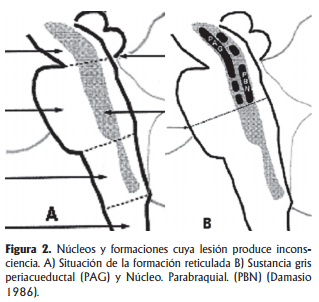 Núcleos y formación de lesiones