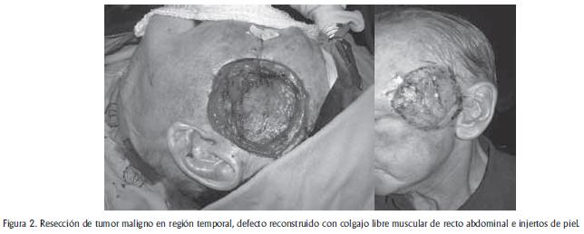 Tumor maligno en region temporal