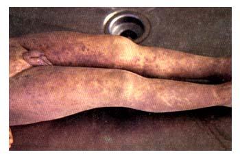 Aspecto macroscópico de las lesiones cutáneas