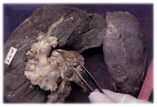 Lesiones miliares diseminadas en hígado y bazo y grandes adenomegalias.