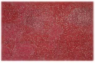 Microfotografía de las lesiones tuberculosas