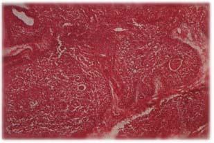 Timo con desarrollo normal con depleción del tejido linfoide. C. de Hassal normales.