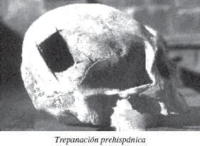 Cráneos con trepanaciones