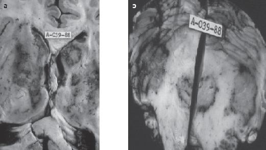 Lesiones Cerebrales y cerebelosas por toxoplasma gondii