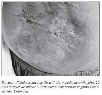 Fístula Crónica en el Íleon Tratamiento con Presión