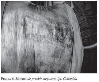 Sistema de Presión Negativa Tipo Colombia