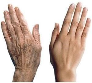 Rejuvenecer manos