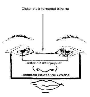 Distancia intercantal interna