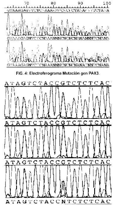 Secuencia Exon 1del gen MITF