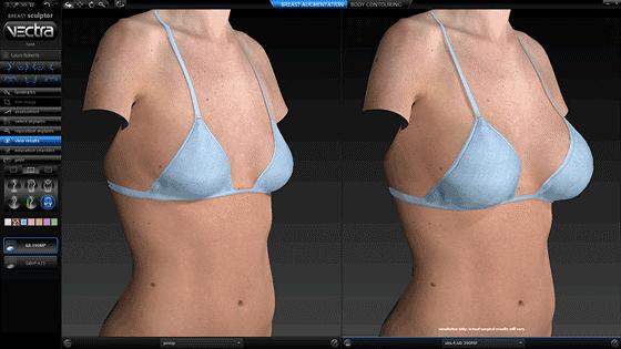 Simulación cirugía de senos