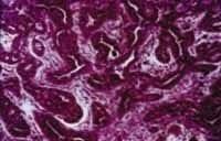 Carcinoma adenoide quístico interno