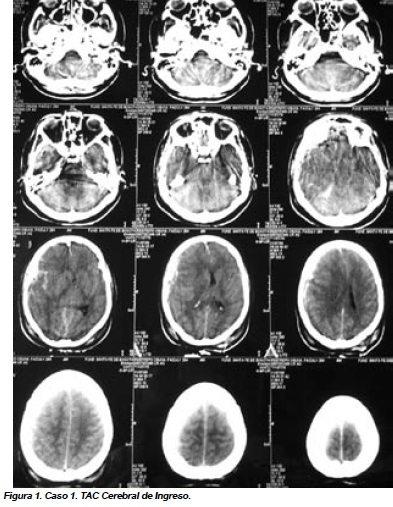 Caso 1. TAC Cerebral de Ingreso