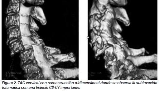 Subluxación Traumática con una Listesis