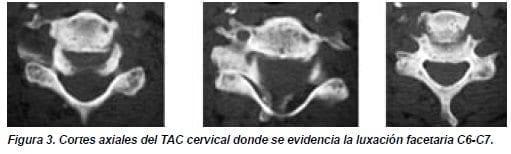 Cortes Axiales del TAC Cervical