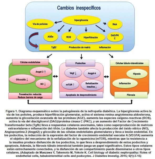 Patogénesis de la Nefropatía Diabética
