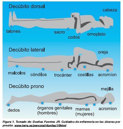 diagnostico de enfermeria para celulitis