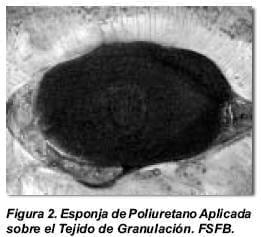 Esponja de Polieuretano en la Cavidad Abdominal